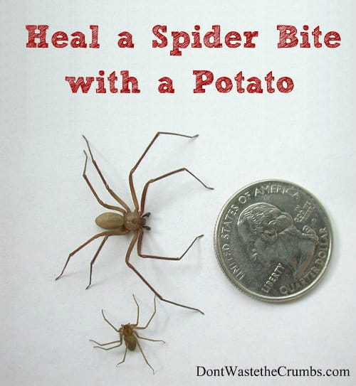 Heal a Spider Bite with a Potato