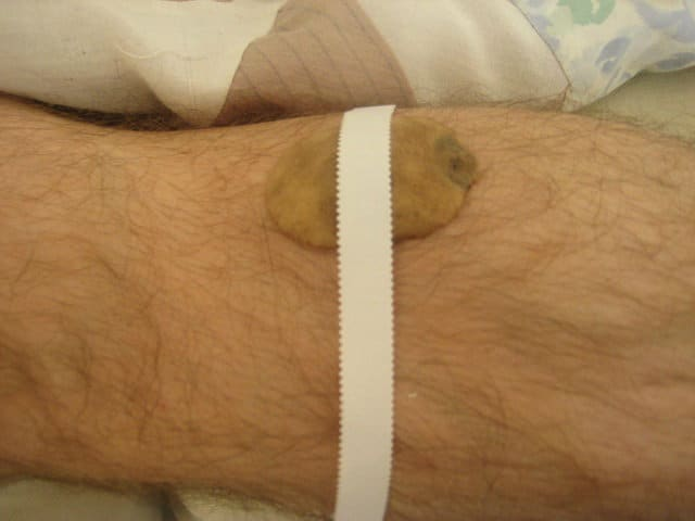 Potato on Leg with Tape 2