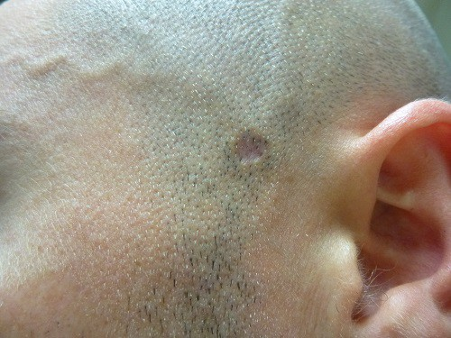 How To Remove Moles With Apple Cider Vinegar Step By Step Tutorial