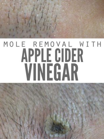 "Two images, both of a mole at different stages of being removed. Text overlay says, ""Mole Removal with Apple Cider Vinegar""."