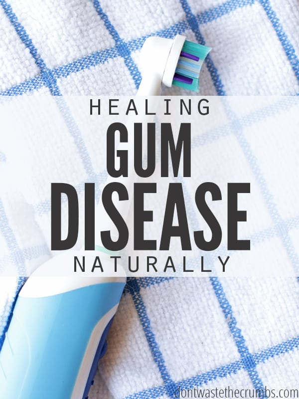 One man's journey to healing gum disease naturally. Read what 3 simple steps he took to heal it completely, safely and effectively! :: DontWastetheCrumbs.com