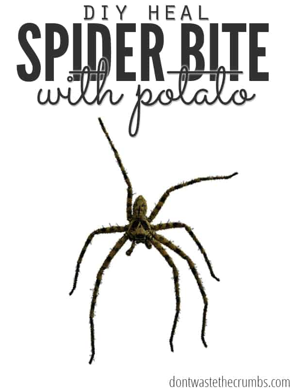 One family's personal story of how they healed a spider bite with a potato. Using just a potato and medical tape, they were able to successfully treat and heal a brown recluse spider bite. :: Dontwastethecrumbs.com